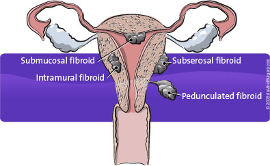 fibroids_395x243